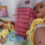 Gizi Buruk Kembali Menyerang Bayi 10 Bulan di Boalemo
