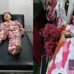 Panah Wayer Merajalela, Gadis 17 Tahun Ini Jadi Korban